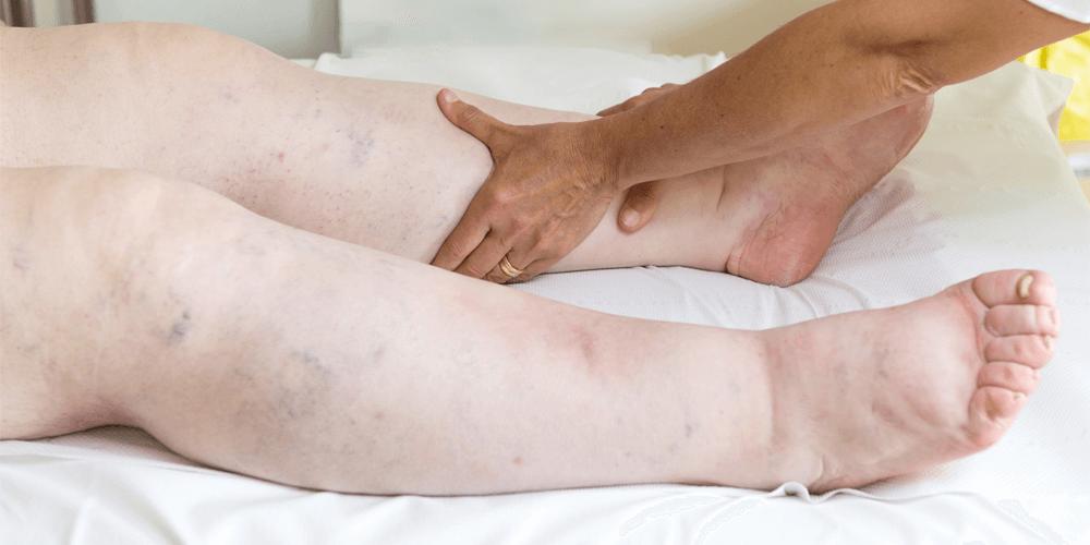 Manuele lymfedrainage - Huidtherapie Meycare